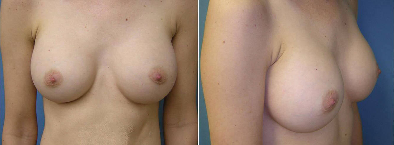 Breast Image 1 after implants
