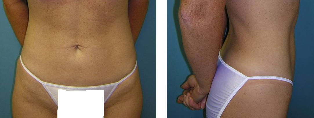 Liposuction Image 2 after