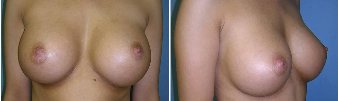 Breast Image 7 after implants