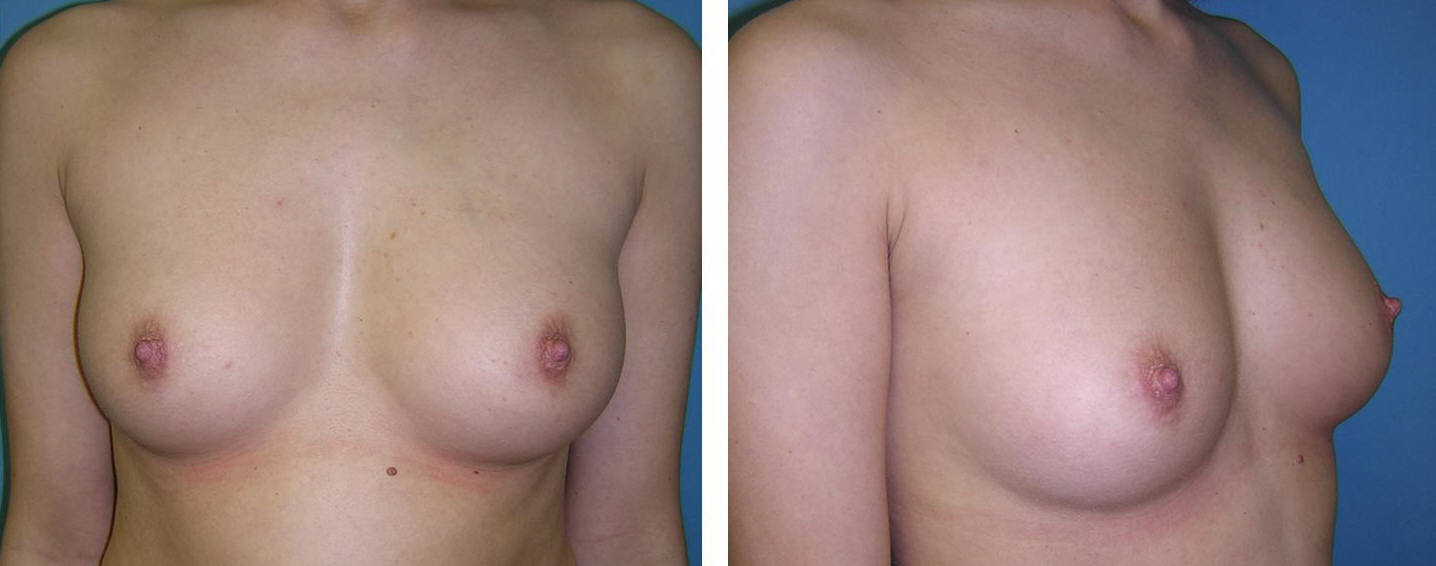 Breast Image 7 before implants