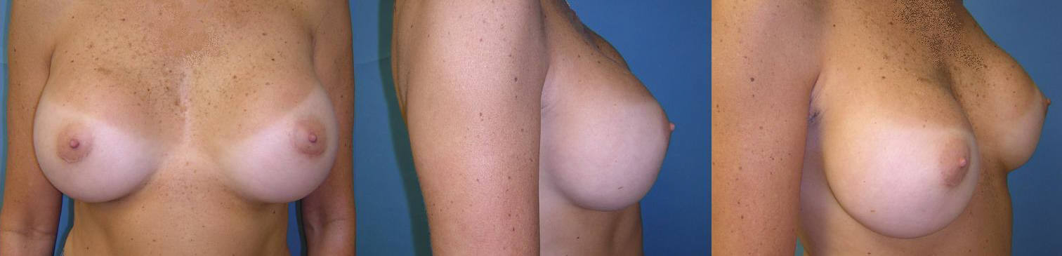 Breast Implant Image 13 After implants