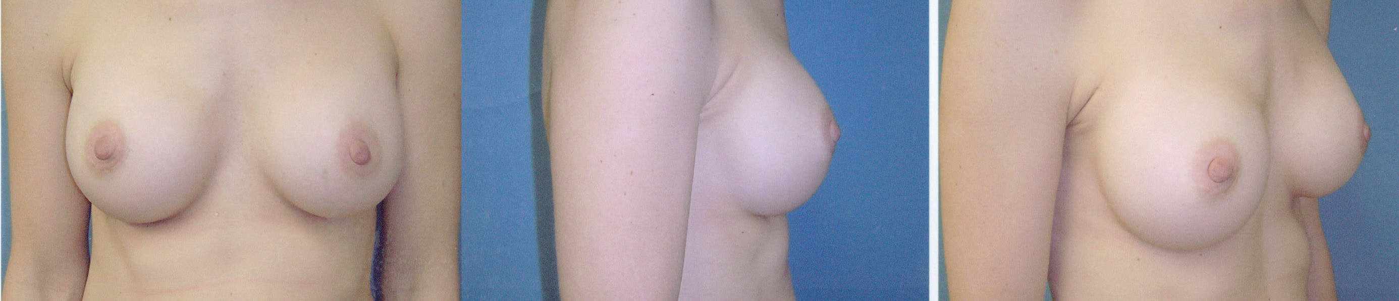 Breast Image 14 after implants