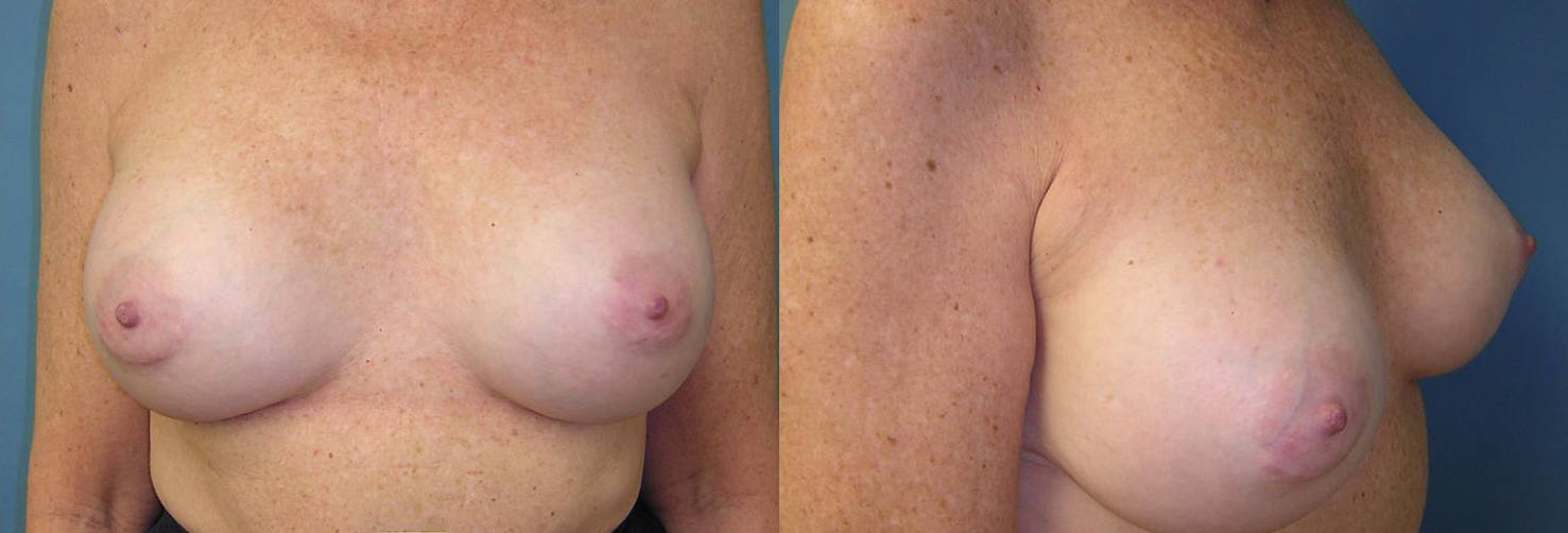 Breast Image 15 after implants