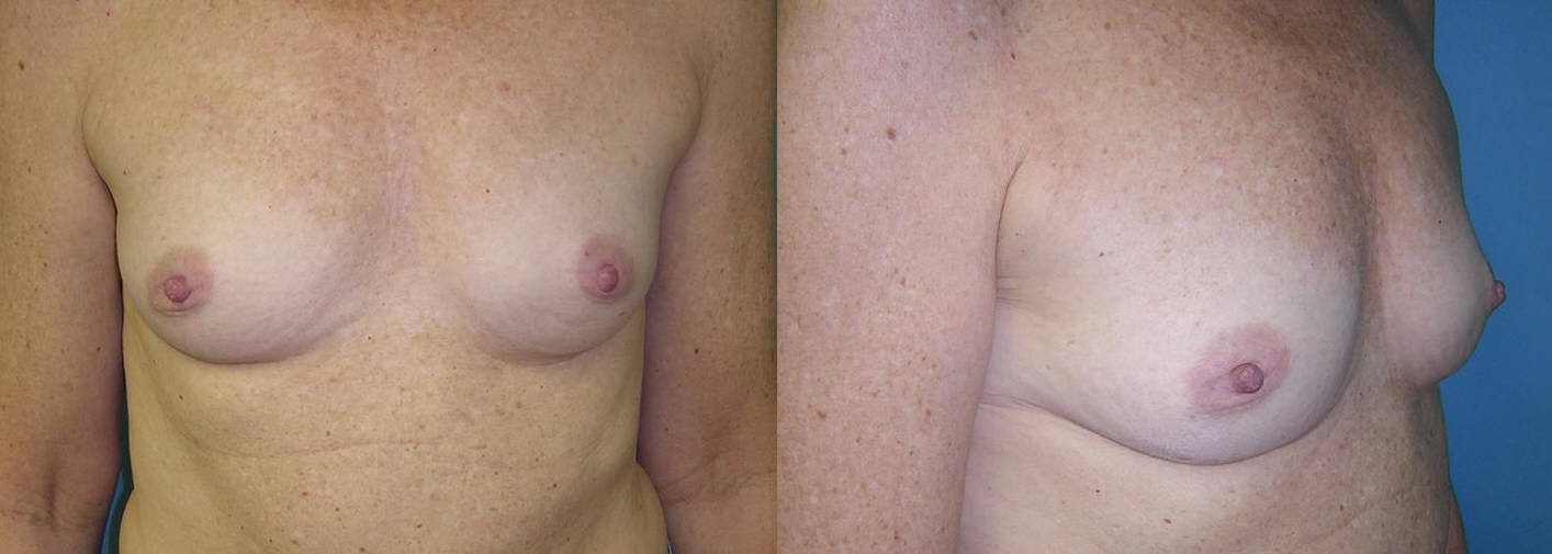 Breast Image 15 before implants