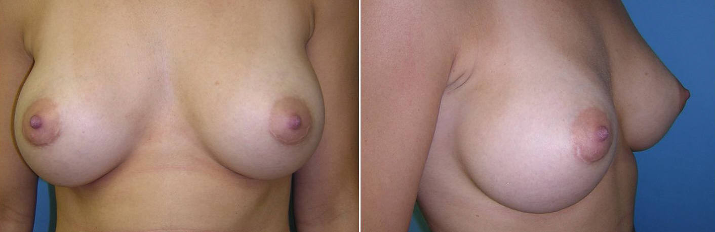 Breast Image 2 after implants