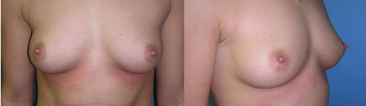 Breast Image 2 before implants