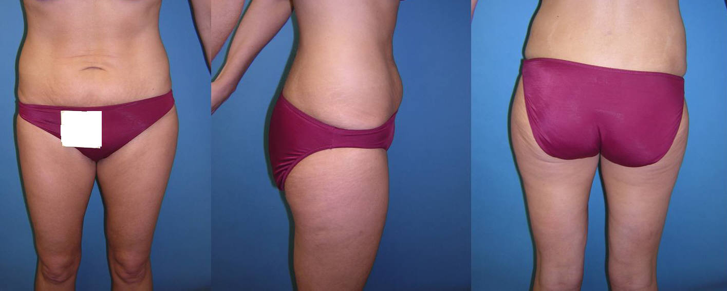Liposuction Image 10 after