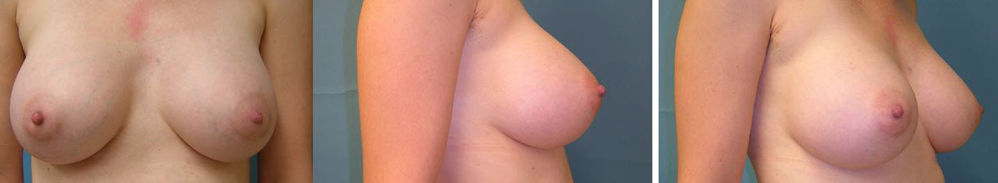Breast Image 23 after implants