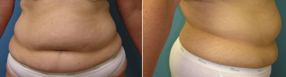 Abdominoplasty Image 3 Before