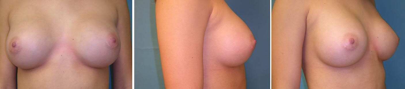 Breast Image 25 after implants