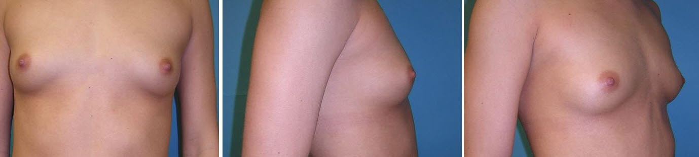 Breast Image 25 before implants