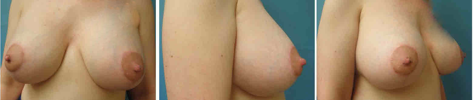 Breast Image 18 after implants
