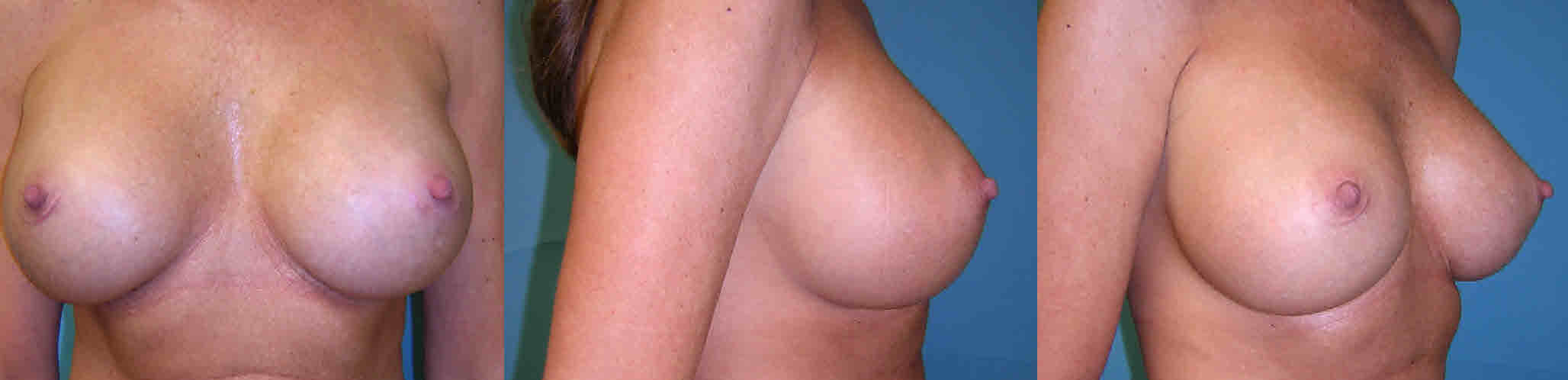 Breast implants add volume to existing breast tissue to create a fuller chest Implant options include silicone or saline rounded or shaped and textured