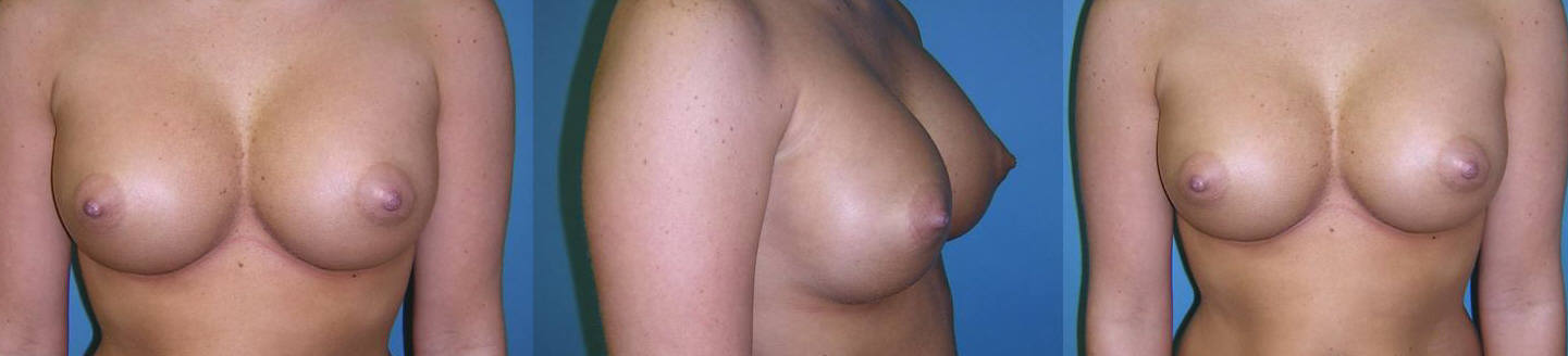 Breast Image 9 after implants