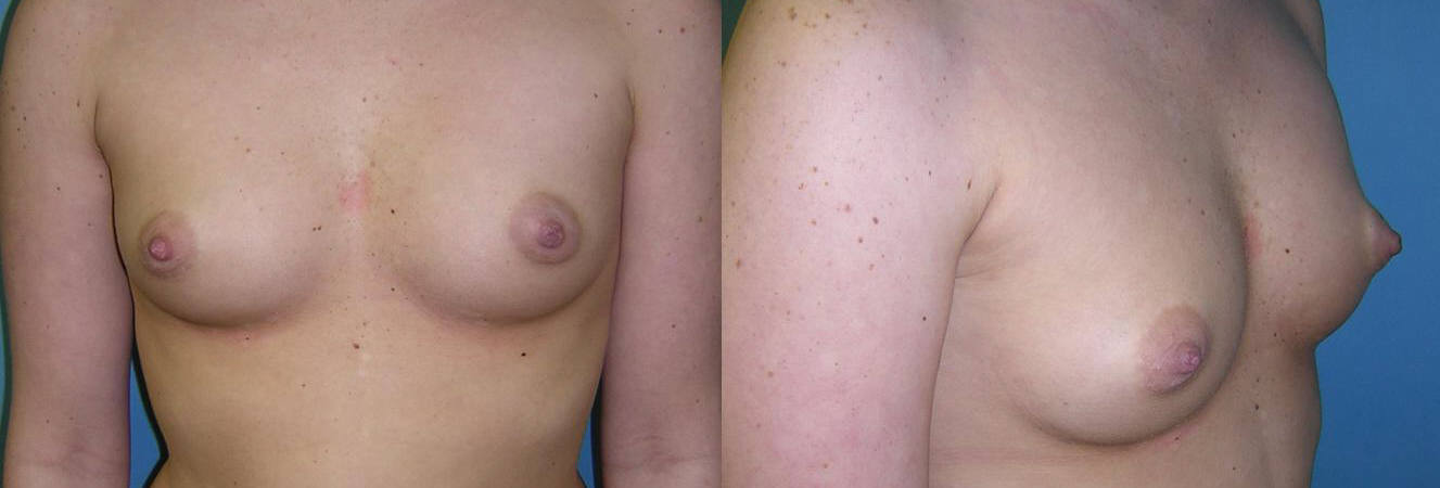 Breast Image 9 before implants